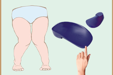 Orthotics for Kids with Knock Knees