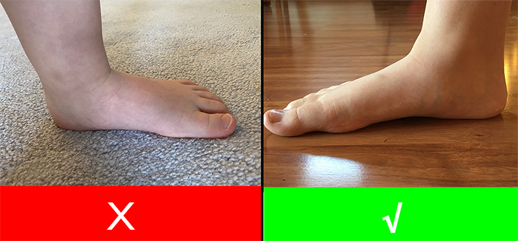 regular-arch-vs-flat-feet