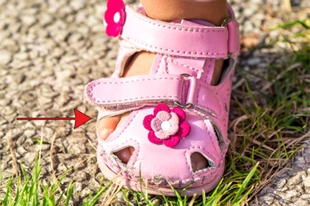 sandals-for-kids-that-are-too-narrow