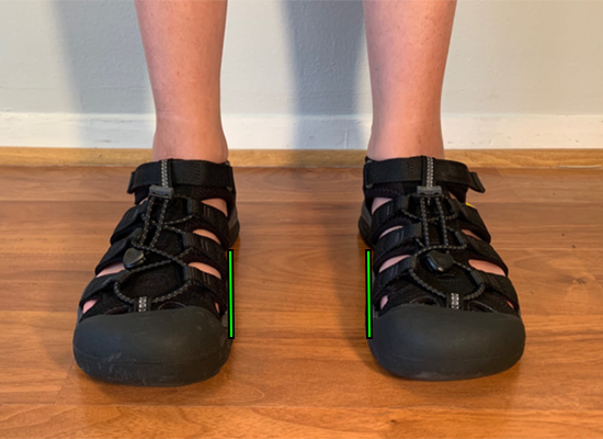 suportive-sandals-for-kids-with-flat-feet