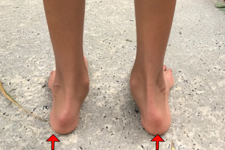 Child with Rolled Ankles