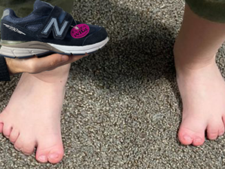 best-shoes-for-kids-with-seven-toes