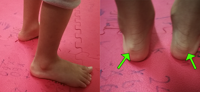Kids' Shoes for Haglund's Deformity