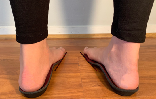 orthotics-for-in-toeing