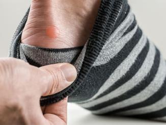 blisters-on-kids'-feet