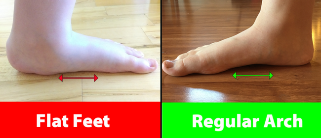 child-with-flat-feet-vs-child-with-regular-arch