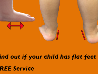 find-out-if-your-child-is-flat-footed