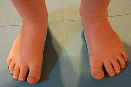 toddler-with-wide-feet