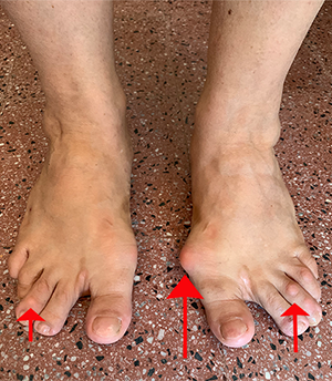 adult-foot-with-bunions-and-other-foot-issues