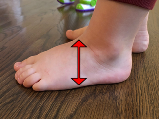 toddler-with-high-instep