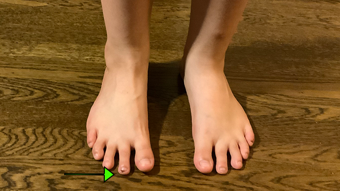 second-toe-longer-than-the-big-toe