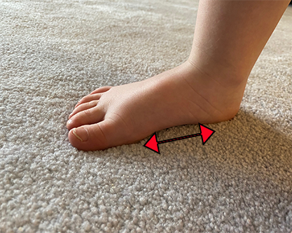 Child with Flat Feet