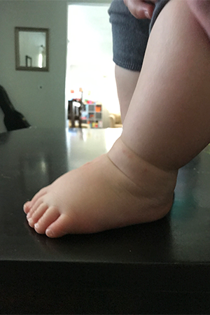 extra-wide-baby's-feet