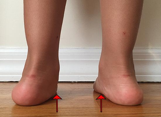 children-with-flat-feet