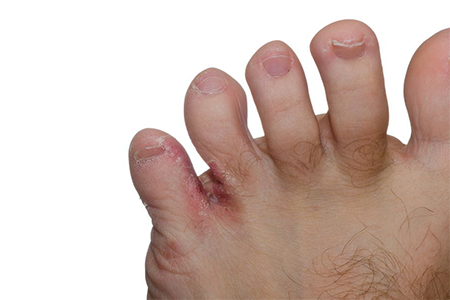 Kids with Athlete's Foot