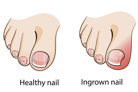 shoes-for-kids-with-ingrown-toenails