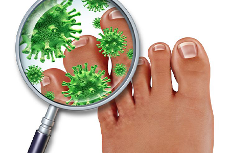 smelly-feet-with-foot-infection