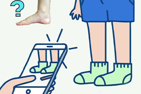 how-to-figure-out-if-your-child-has-a-high-instep