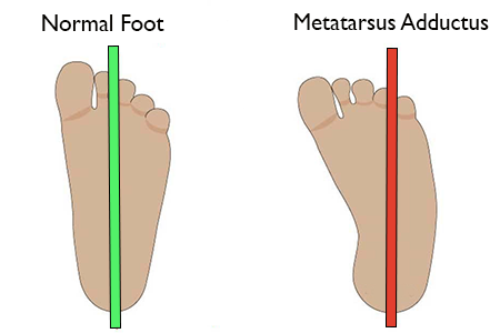 Best Shoes for Kids with Metatarsus Adductus