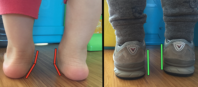 toddler-with-flat-feet-wearing-supportive-shoes