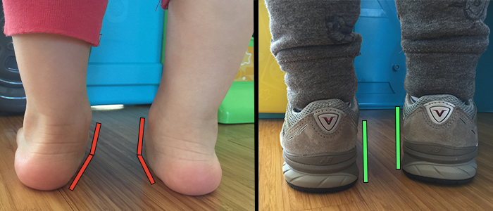 Toddler with Flat Feet Wearing Supportive Shoes