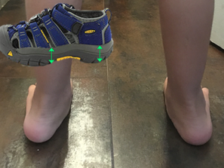 best-sandals-for-kids-with-low-muscle-tone