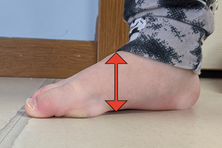 toddler-foot-with-high-instep