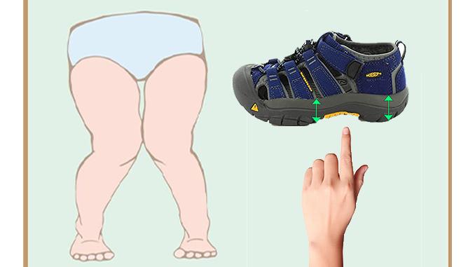best-sandals-for-knock-knees